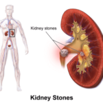 How Potato Is Useful In Curing Kidney Stone