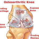 Natural Cure For Osteoarthritis – Natural Remedies