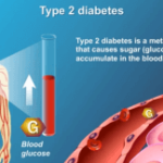 Step By Step Plan To Take Control Of Type 2 Diabetes