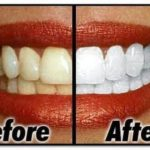 5 Natural Homemade Teeth Whitener