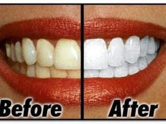 Natural Homemade Teeth Whitener