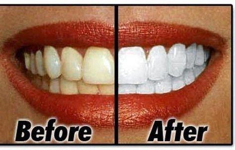 Natural Homemade Teeth Whitener