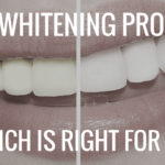 Best Teeth Whitening Alternative You Should Try