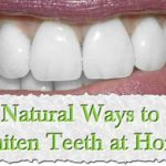 Top 10 Ways To Whiten Your Teeth At Home