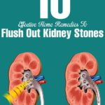 10 Ways You Can Cure Kidney Stone Naturally