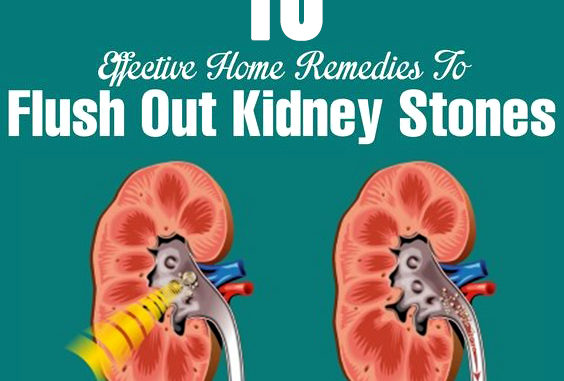 10 Ways You Can Cure Kidney Stone Naturally Quickhomeremedy